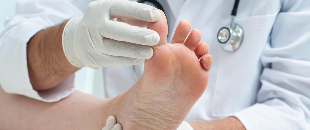 effet du diabete sur les pieds